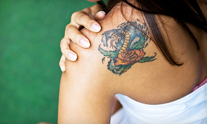 laser x tattoo removal reviews