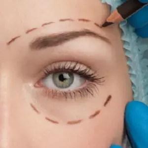 non surgical eye lift reviews