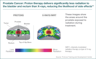 proton therapy for prostate cancer reviews