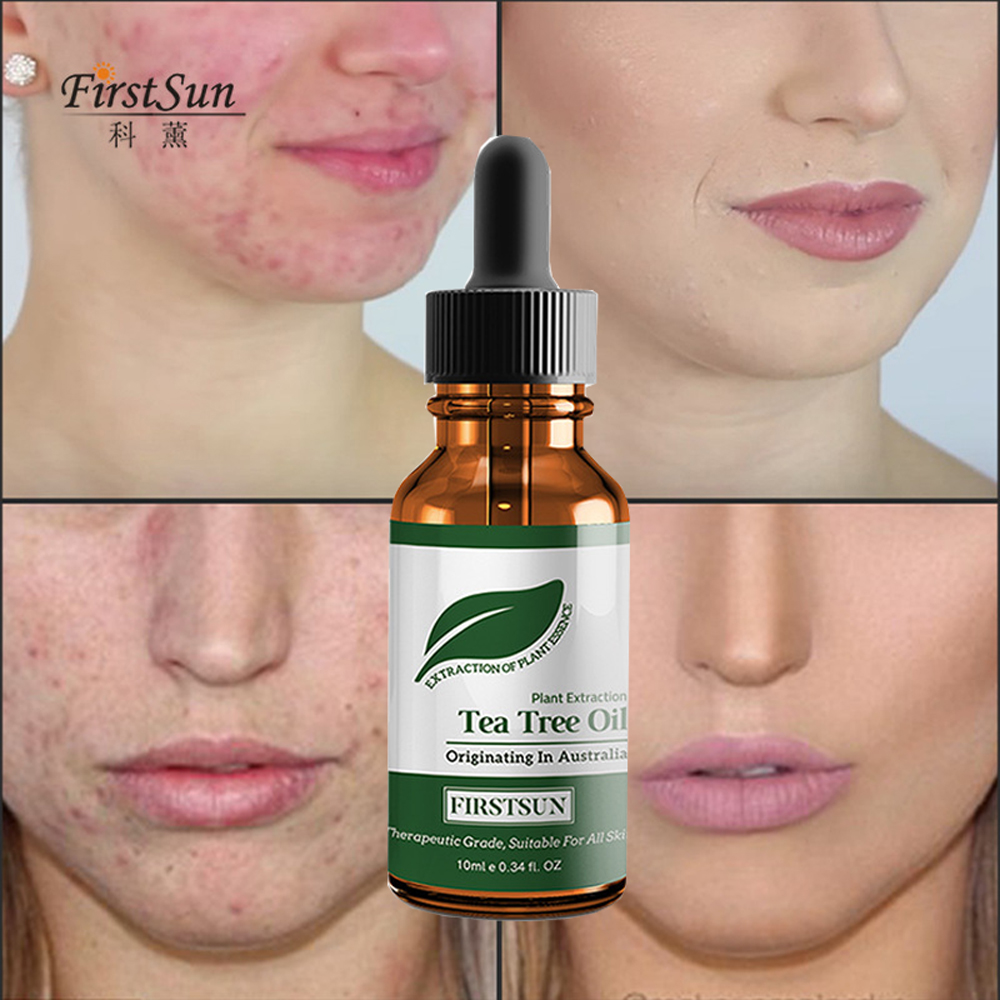 tea tree oil and acne reviews