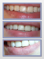 luster teeth whitening toothpaste reviews