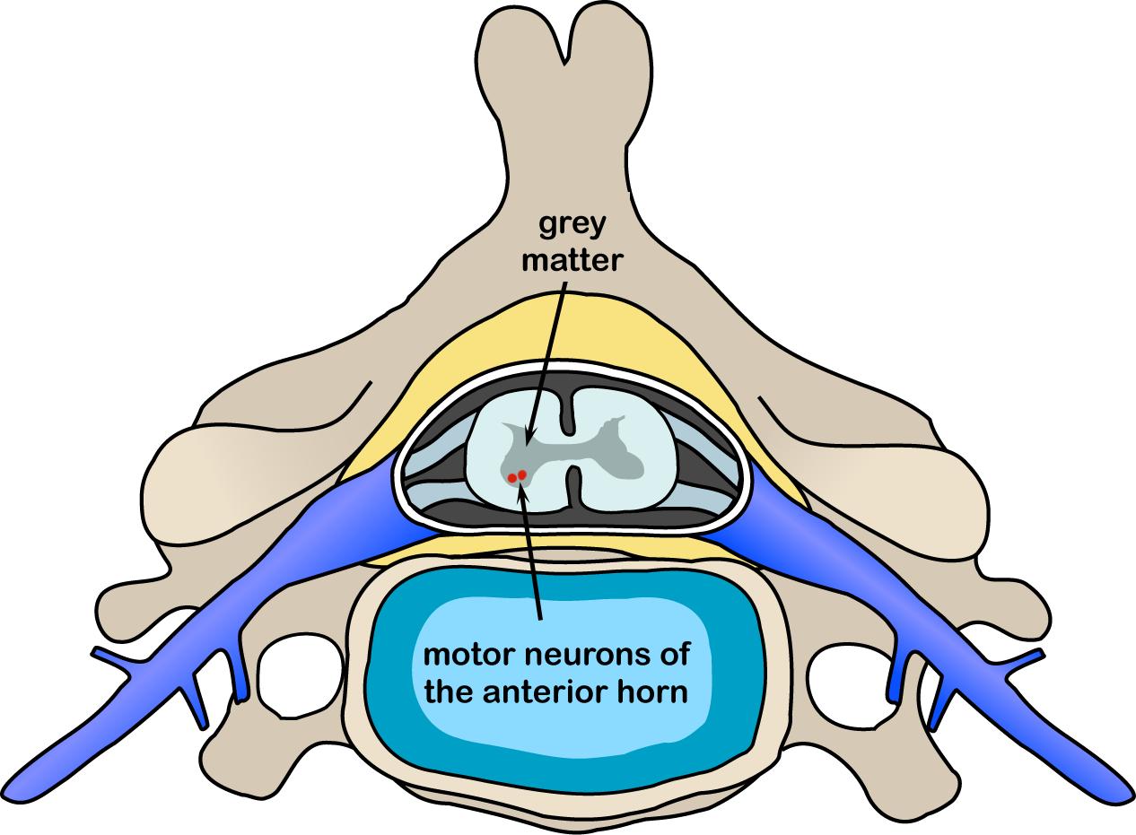 spinal muscular atrophy gene reviews